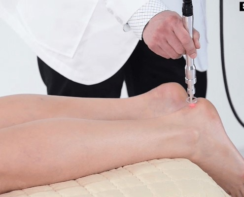 Hilthera Achilles Tendon Treatment