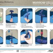 Marrow Cellution Process Steps