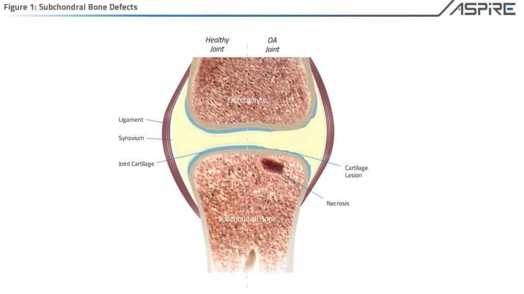 Sub Chondral Bone Augmentation Aspire Medical Innovation