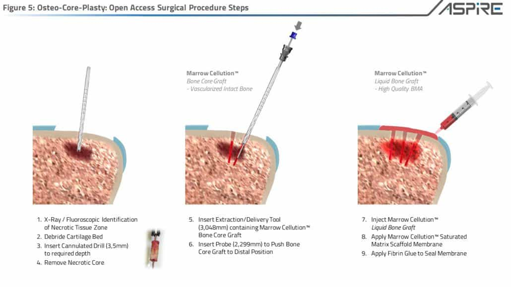 Open Osteo-Core-Plasty for Damaged Cartilage