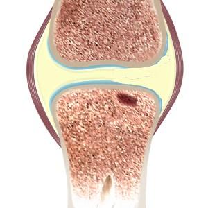 Joint Osteo Core Plasty